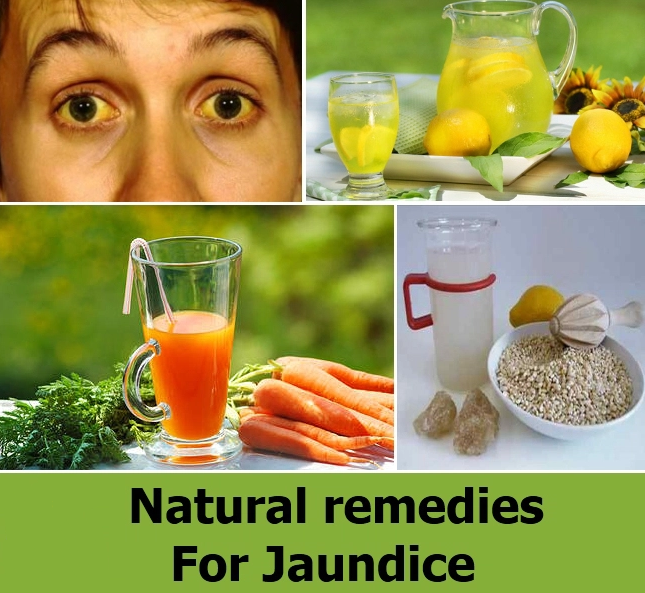 Home Aayurmedic Remedies for Jaundice in Hindi