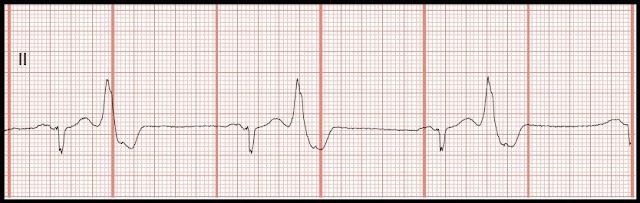 Ventricular Bigeminy Rhythm Sinus Rhythm With Ventricular