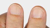 Todas las cosas que las uñas pueden delatar sobre tu salud (y que quizás no quieras saber)