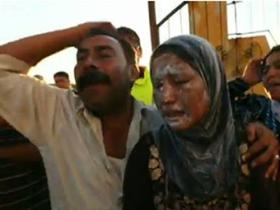 Syrian victims of napalm bombs