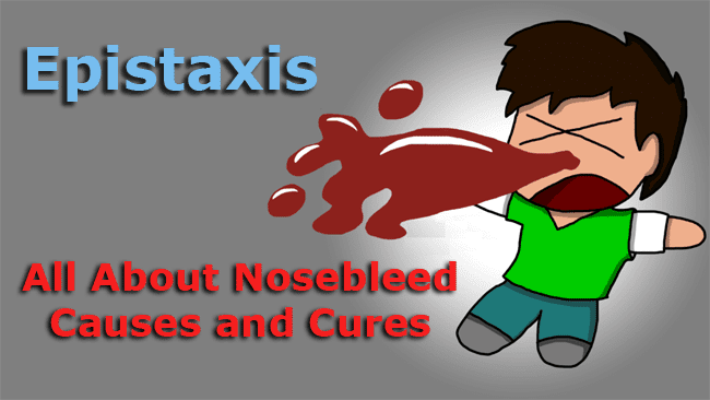 All About Nosebleed Causes and Cures