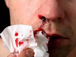 Punca Hidung Berdarah Secara Tiba-tiba