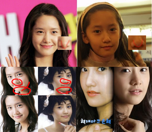 that s why westerners think we are always getting plastic surgeryYoona Plastic Surgery Nose