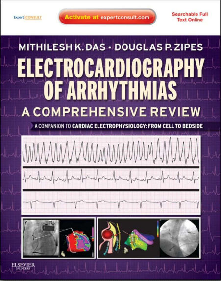 Electrocardiography of Arrhythmias-A Comprehensive Review-A Companion to Cardiac Electrophysiology (Apr 12, 2012)