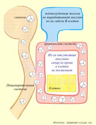 болезнь здорового питания