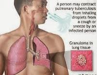 mengobati penyakit TB paru-paru