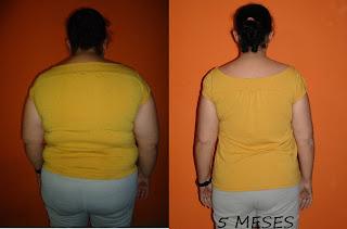 suziane bruguez proença dieta obesidade emagrecimento gastroplastia