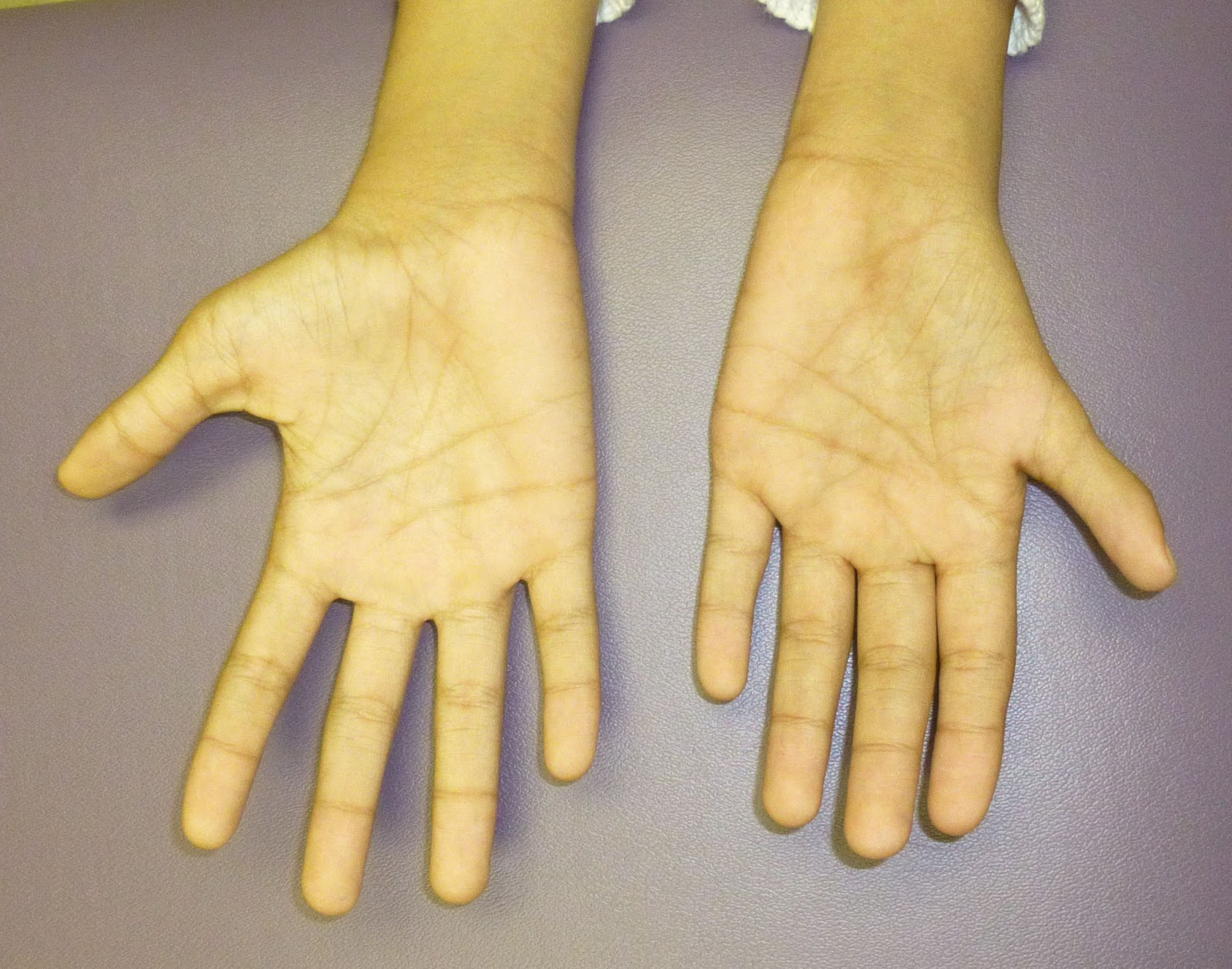 Small Thumbs Congenital Hand And Arm Differences
