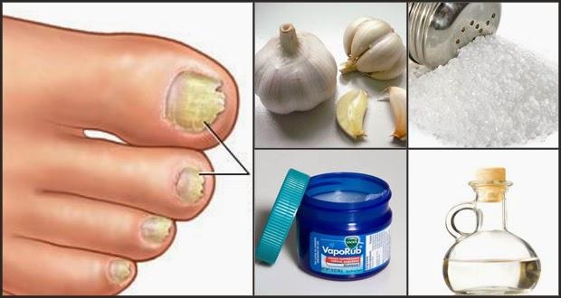 Como curar lo mejor de todo el hongo de los pie