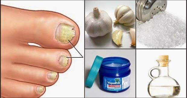 Algo interesante 5 remedios caseros para eliminar los - Eliminar hongos de la pared ...