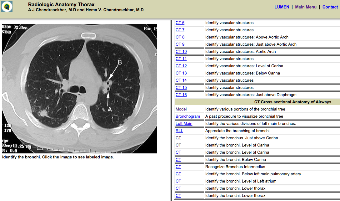 Winding Spiral Case: A Day in the Life: Radiology