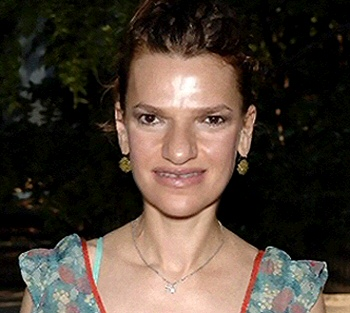 sandra bernhard plastic surgery before and after facelift botox and