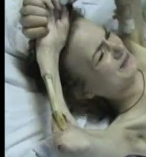 Obat Crocodile Drug / Krokodil Drug Narkoba Yang Merubah Manusia Jadi Zombie