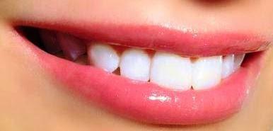Cara Ampuh Memutihkan Gigi Dengan Cepat Dan Aman