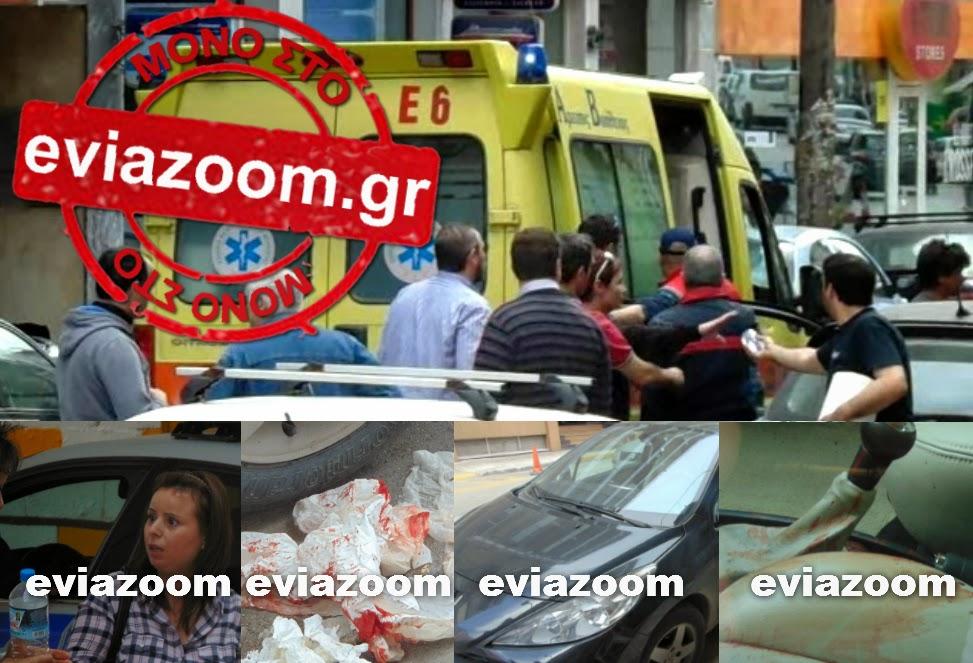 Φρικτό ατύχημα στη Χαλκίδα: Αστικό λεωφορείο έκοψε τα δάχτυλα 27χρονης οδηγού που έβγαινε από το αυτοκίνητο - Mαρτυρίες-σοκ στο eviazoom.gr (ΦΩΤΟ & ΒΙΝΤΕΟ)