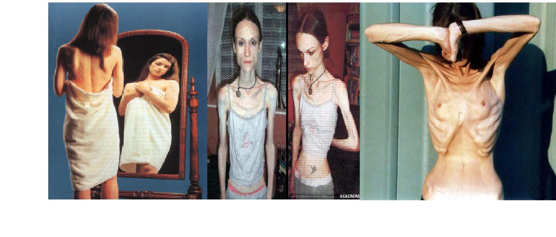 El adelgazamiento de los órganos interiores
