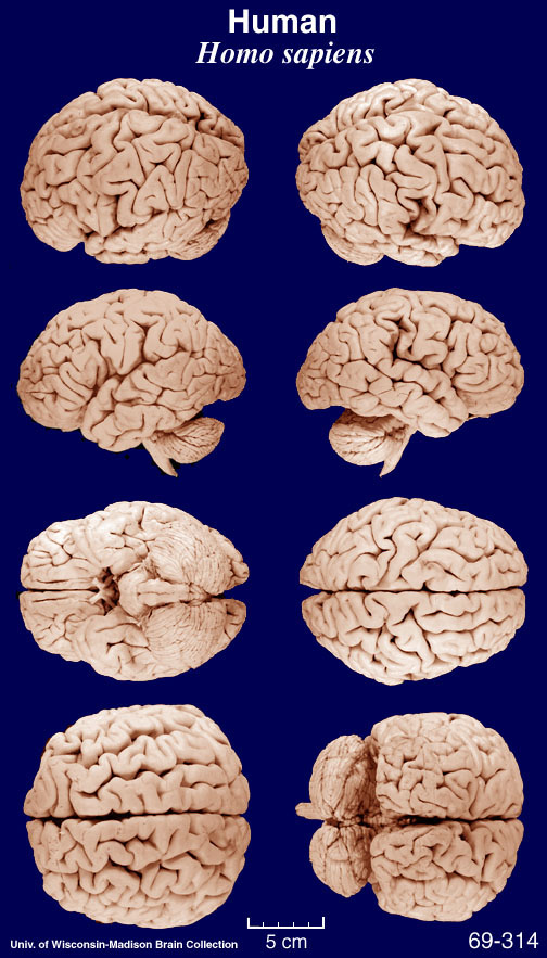 Cat Brains Similar To Human Brains