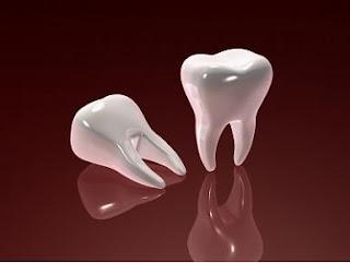 Dental Implants New York