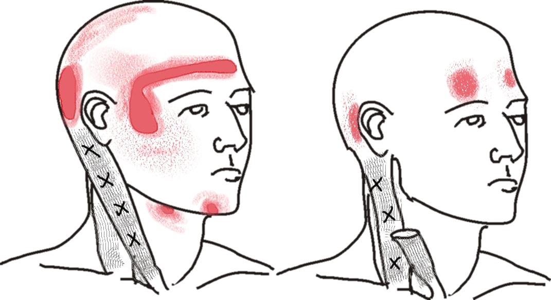 headache chart