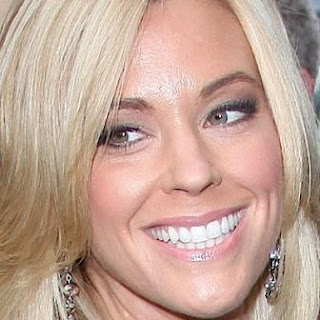 Kate Gosselin teeth whitening