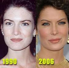 Restylane for uneven lips celebrity