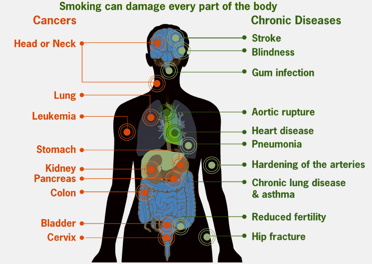 major diseases are caused by smoking cigarettes
