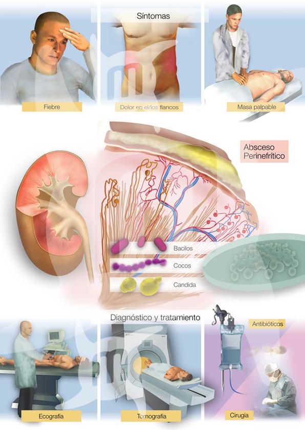 El dolor en el lado la náusea el vómito da el dolor a la espalda