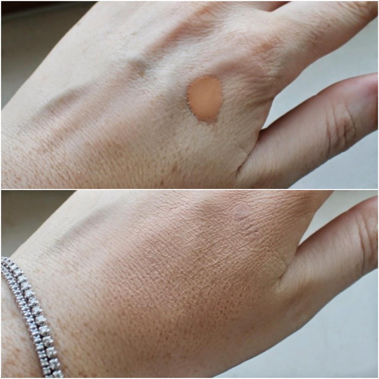 clinique acne solutions