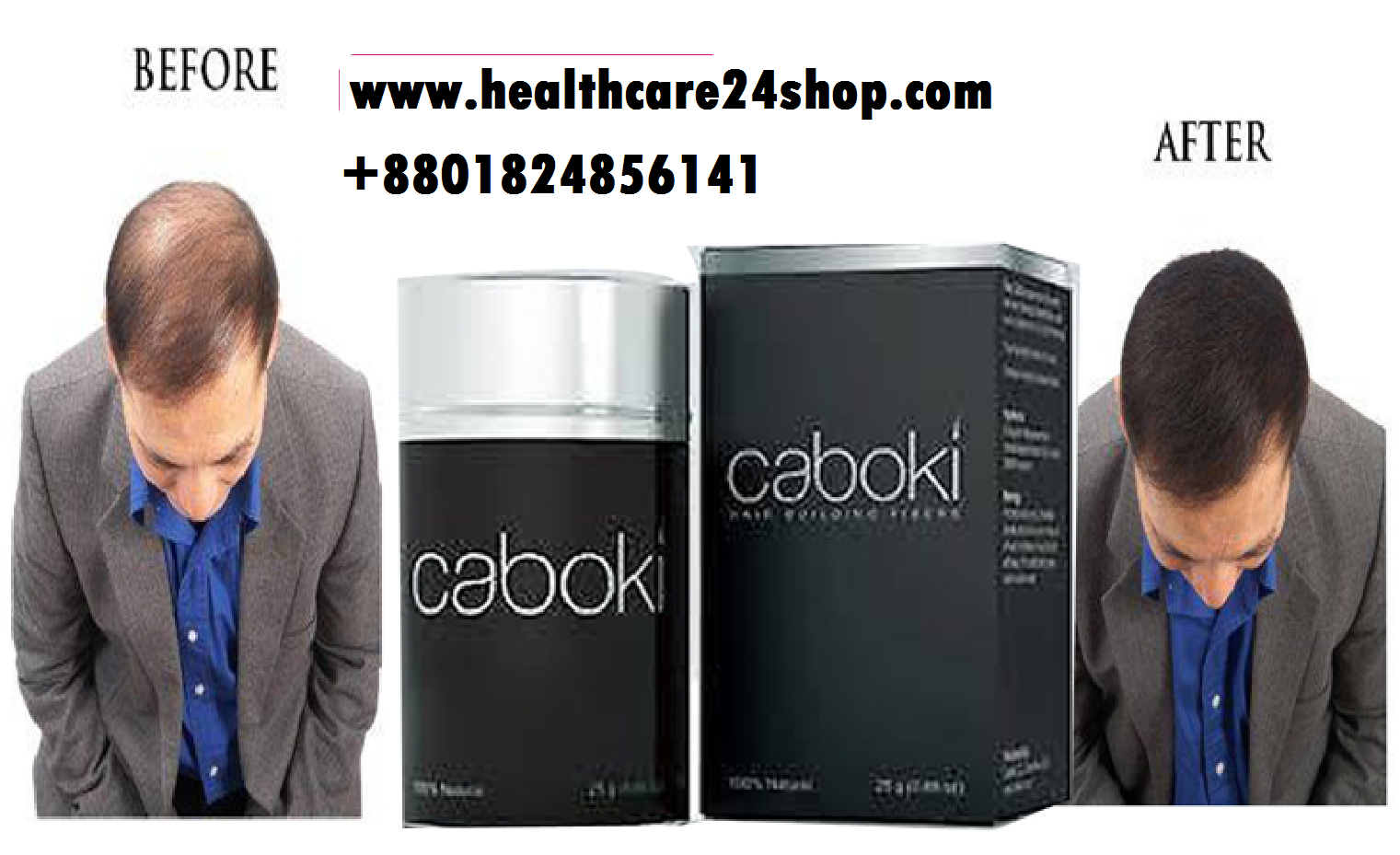 Original Caboki Hair Building Fibers 25g Instant Growth Fiber Usa Loss Treatment