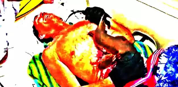 BΙΝΤEO: Καρχαρίας δαγκώvει και «γαντζώνεται» στην κοιλιά ενός ψαρά