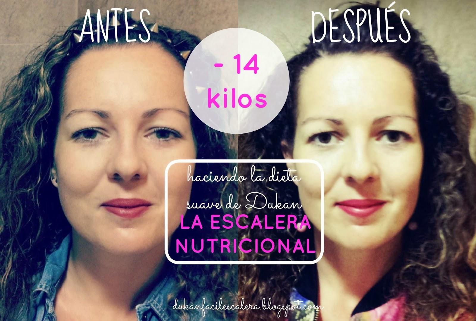 El antes y después de mi perdida de peso,adelgazando equilibradamente con fotos reales haciendo la nueva dieta suave de Dukan , La Escalera Nutricional.