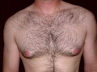 Sacramento Gynecomastia - Male Breast Reduction