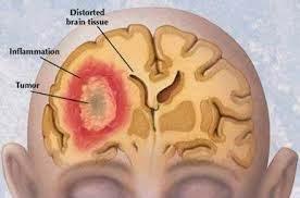 Cara Menyembuhkan Kanker Otak
