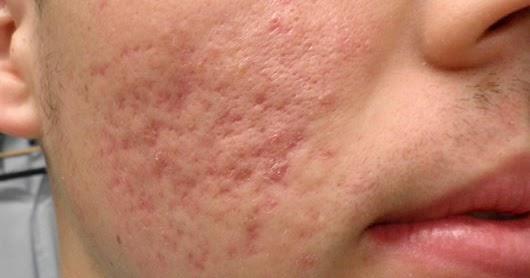 Como Quitar Las Cicatrices De Acne 3 Remedios Naturales