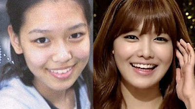 Sooyoung Girls Generation Before After