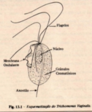 Pictures of Trichomoniasis Vaginalis Labeled