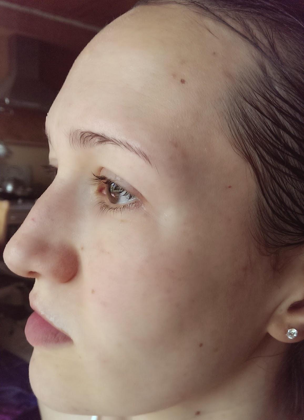 После умывания пенкой Beyond Farm Phytoganic Facial Foam