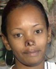 Autoridades resguardan mujer con nariz cercenada por pareja