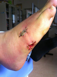 Foot after removal of stitches