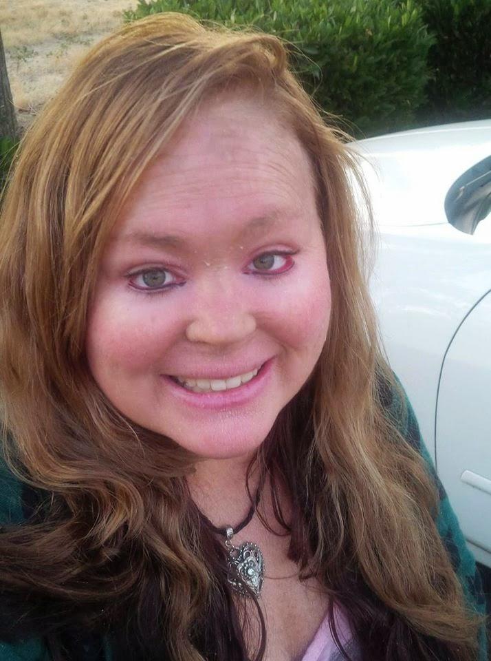 Gina, who has Lamellar Ichthyosis