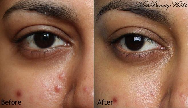 Kết quả Trước và 3 ngày sau khi dùng bộ sản phẩm  La Roche-Posay Effaclar