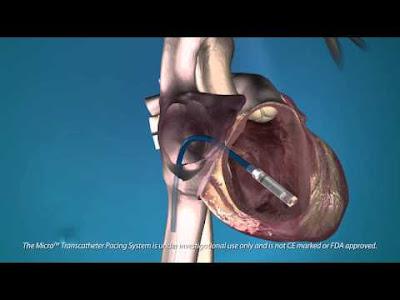 Un marcapassos alimentat pel propi batec del cor