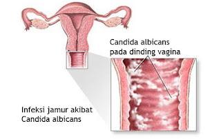 Cara merapatkan vagina secara alami dan mengobati keputihan