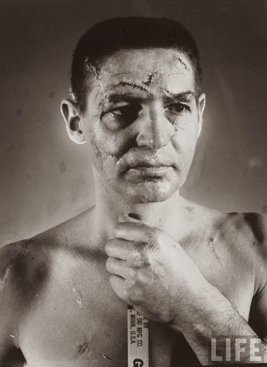 http://4.bp.blogspot.com/-SqvsJfOabPI/UwaZSS1WBqI/AAAAAAAAItQ/_V8vq5c7_m0/s1600/Terry+Sawchuk+The+face+of+a+hockey+goalie+before+masks+became+standard+game+equipment,+1966.jpg