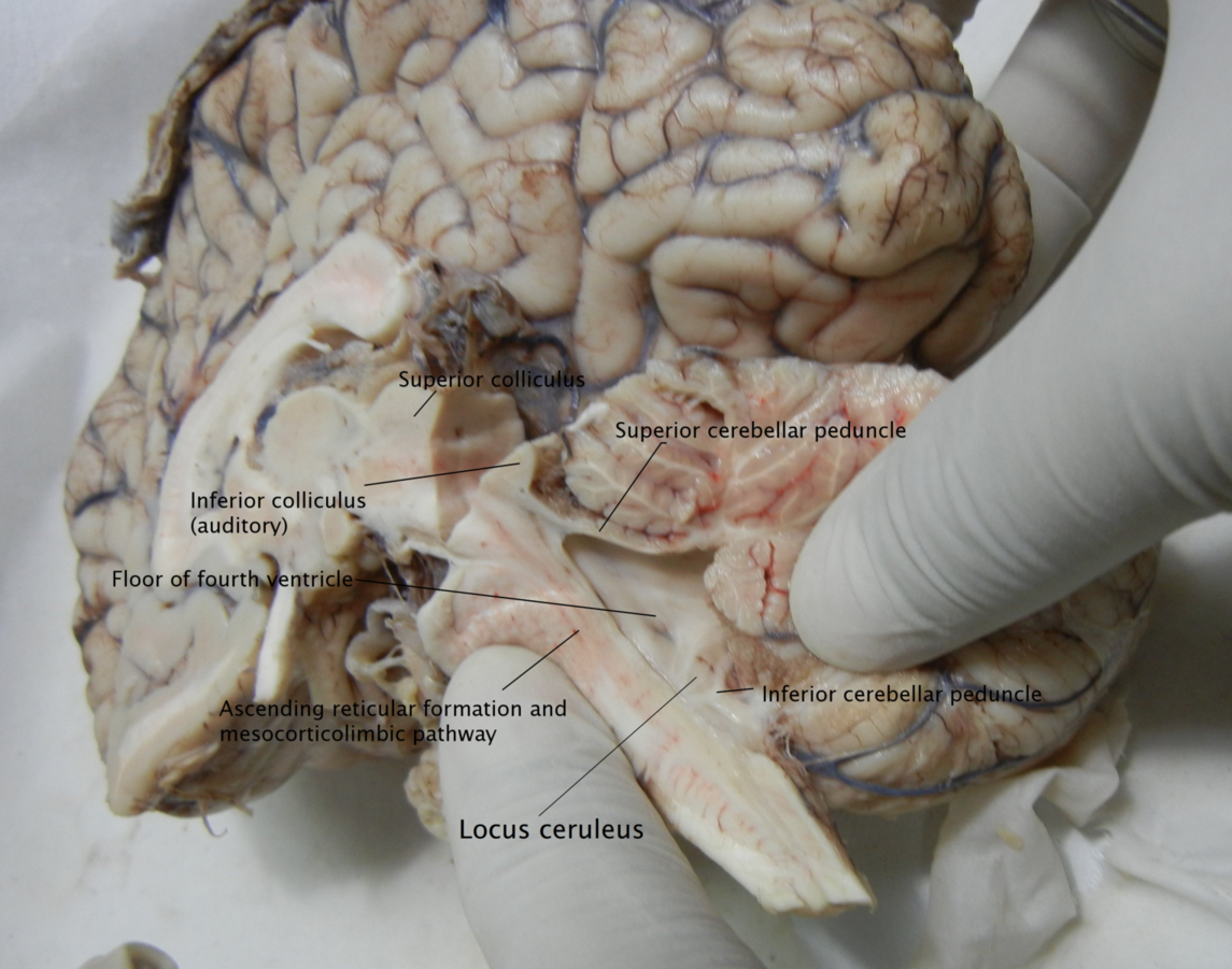 Into the roots basic neuroanatomy for Floor of fourth ventricle