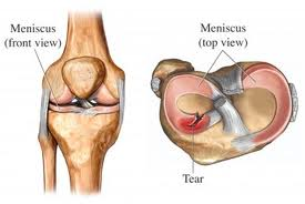 gimnasia rodilla artrosis:
