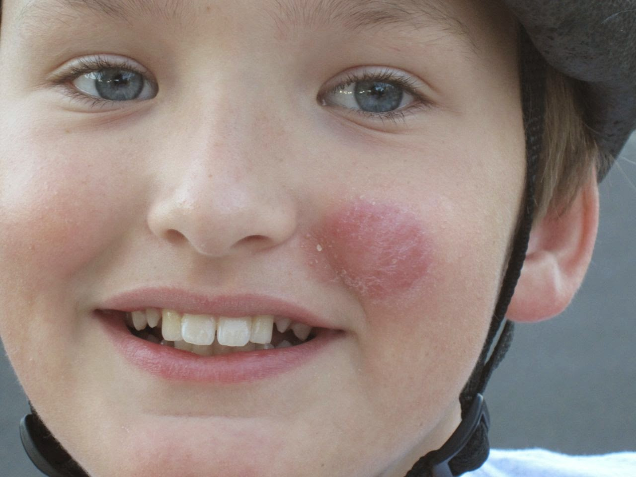 pictures of ringworm on face #10