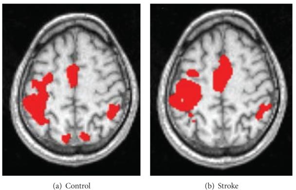 脳機能画像