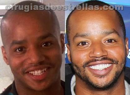 Donald Faison antes y después