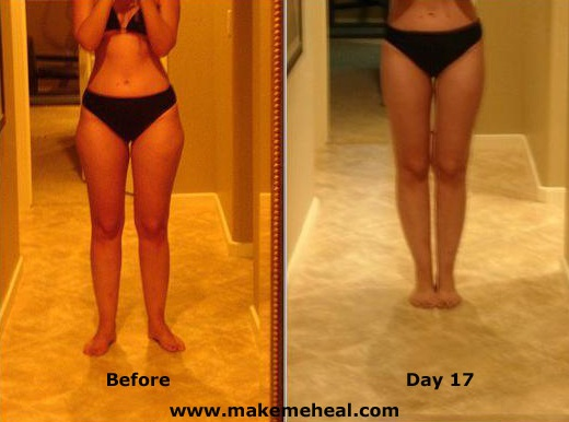 Does gluten free food help in weight loss photo 7